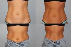 O que é a Criolipólise? Esse Tratamento Ajuda a Queimar Gordura?