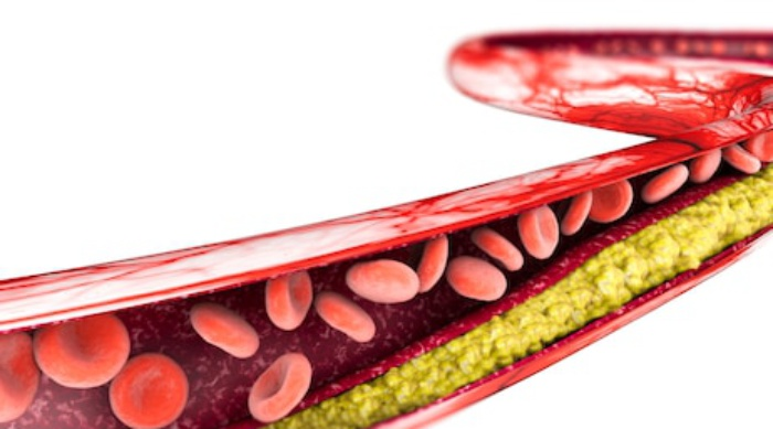 Como Baixar o Colesterol Ruim LDL, Sintomas e Valores de Referência